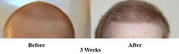 3-weeks-before-after.jpg